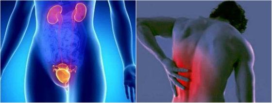 Νεφρολιθίαση: Υποφέρετε κι εσείς από κολικούς νεφρού;
